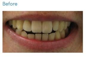 BeforeAfterTeethWhiteningLosAngeles-(23)